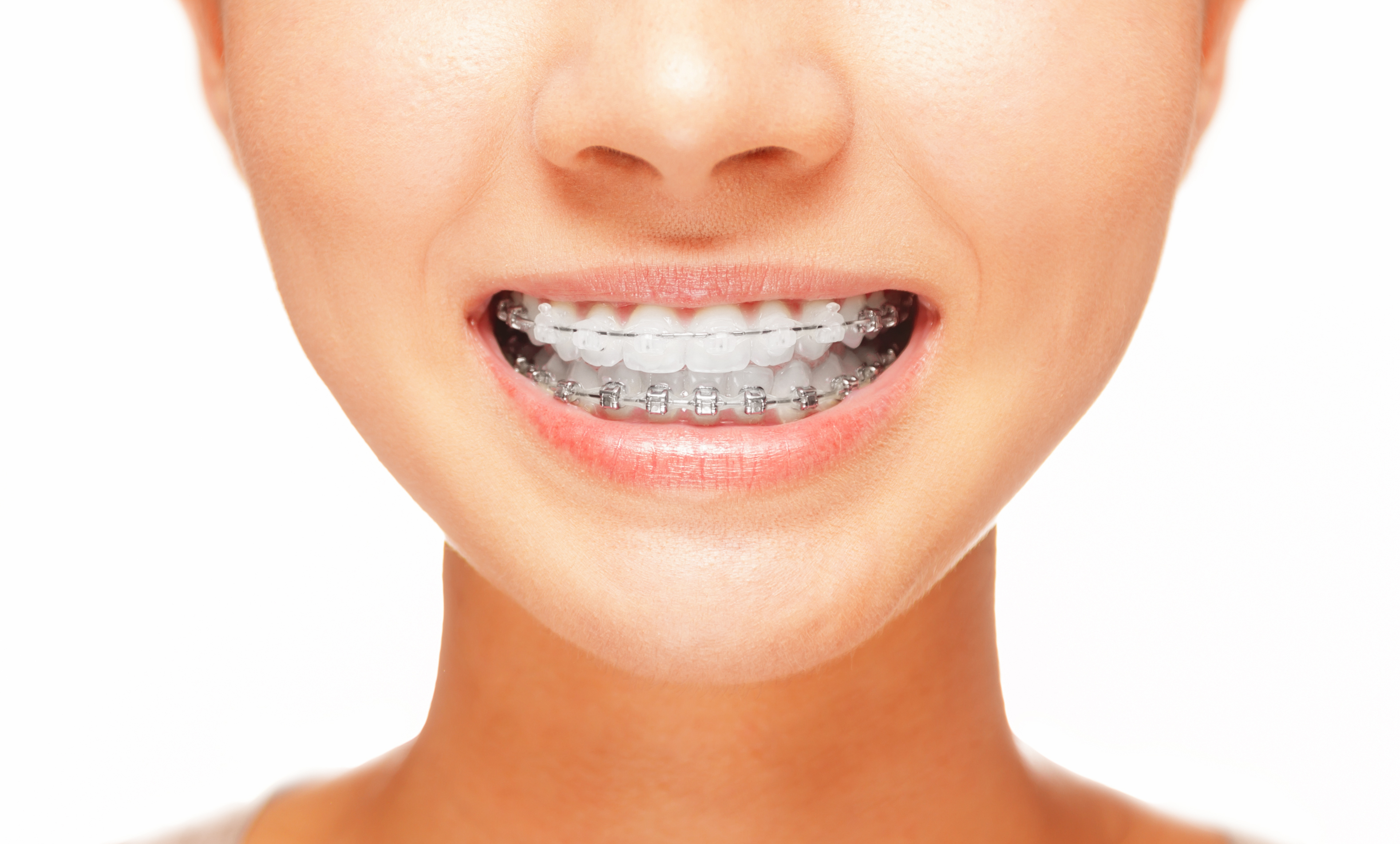 Orthodontist Naples FL