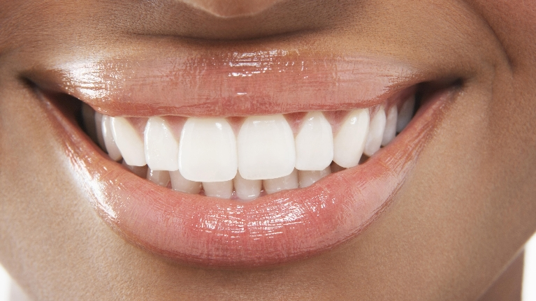 veneers naples fl | porcelain veneers naples fl