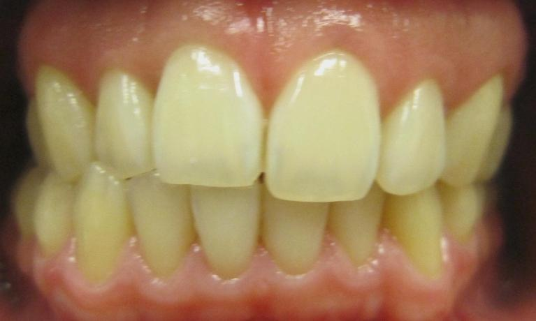 Invisalign-and-Bleaching-Before-Image