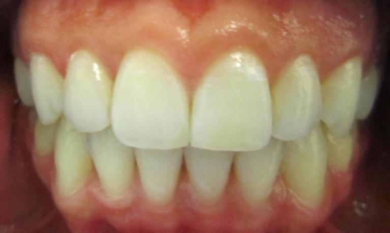 Invisalign-and-Bleaching-After-Image