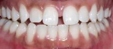 Six-Month-Smiles-Case-One-Before-Image