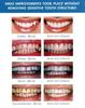 Before-and-After-Veneers-After-Image