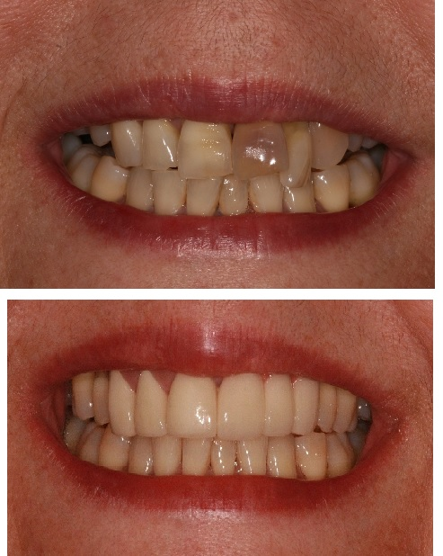 Dental Implants and Porcelain Crowns Before and After