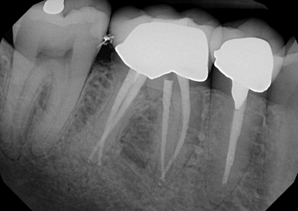 Root Canal Treatment #30