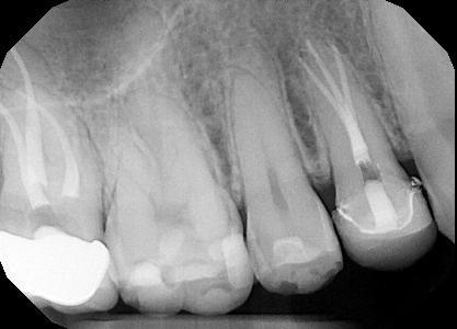 Root-Canal-Treatment-5-After-Image