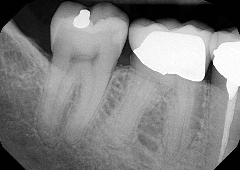 Root-Canal-Treatment-30-Before-Image
