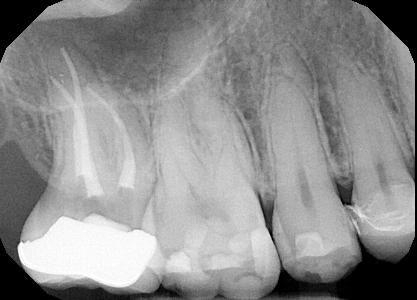 Root-Canal-Treatment-5-Before-Image