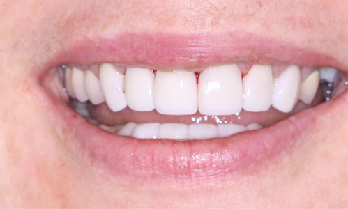 Restoration of a worn smile with veneers and crowns